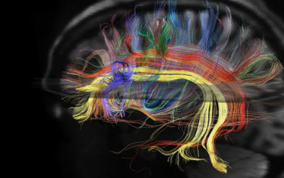 Wiring of the Brain